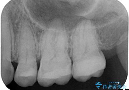 全顎矯正+セラミック治療による口腔内の総合リコンストラクションの治療後