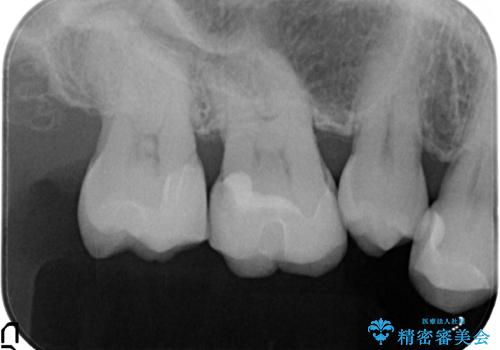 つめものが欠けた 奥歯のセラミックインレーの治療後
