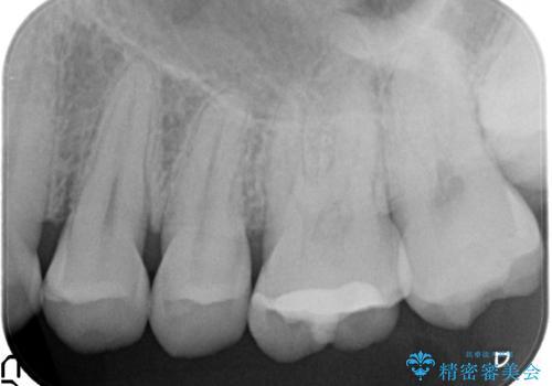 欠けた歯の修復 ゴールドインレーの治療前