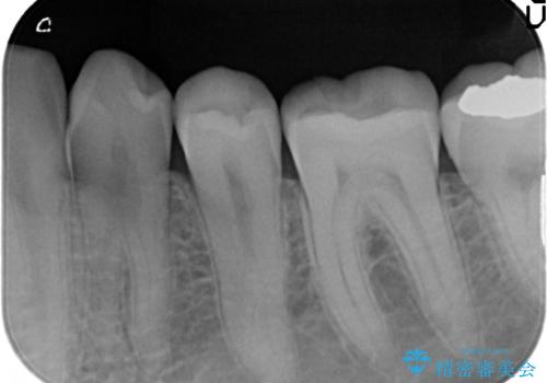奥歯がしみる つめ物がかけたの治療後