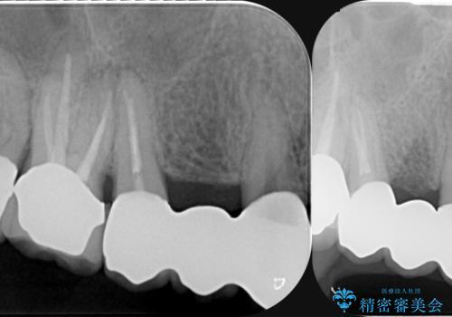 多発した縁下カリエス 歯周外科を併用する虫歯治療の治療後
