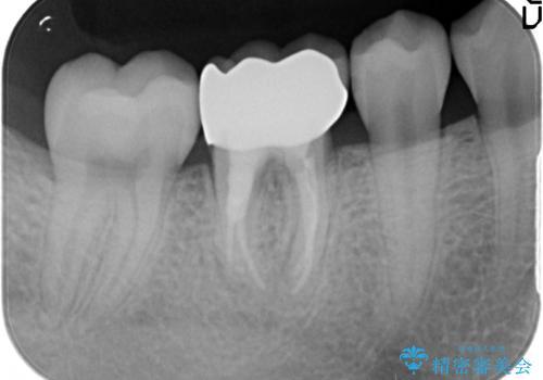 歯の高さがなく、被せ物が外れる 歯周外科手術で解決の治療後