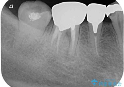 奥の銀歯をきれいにしたい オールセラミッククラウンによる審美歯科治療の治療前