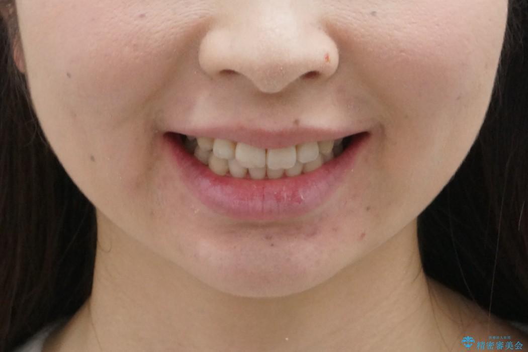 30代女性 インビザラインで前歯をキレイに マウスピース矯正の治療後(顔貌)