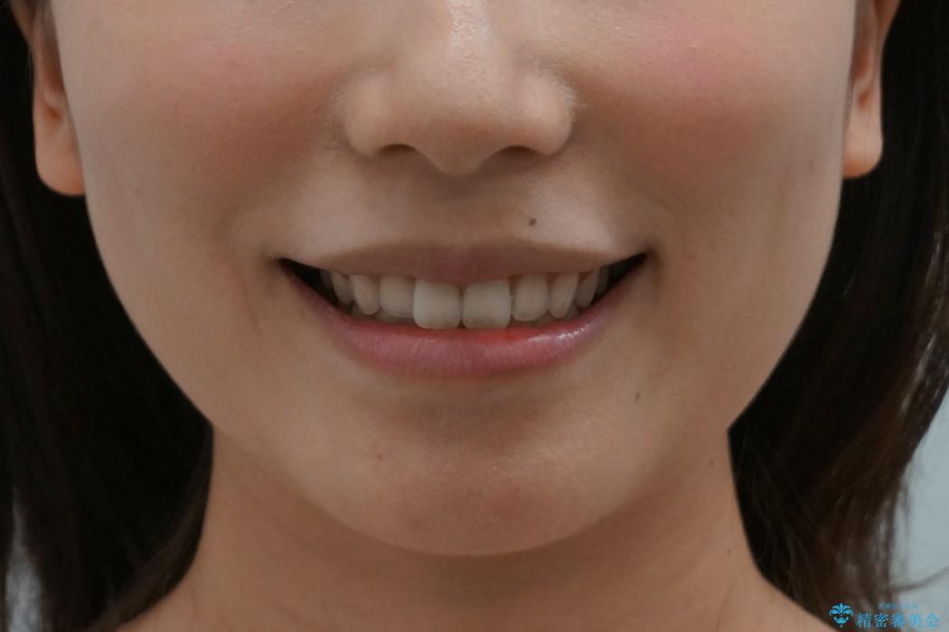 前歯のわずかなねじれ 歯を削らずマウスピースで インビザライン・ライトで手軽にの治療前(顔貌)