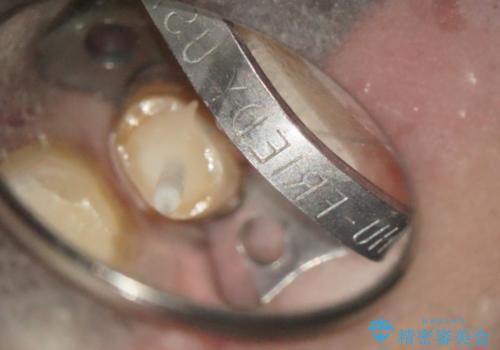 金属の冠をセラミックへ交換する 根管治療からやり直しましょうの治療中