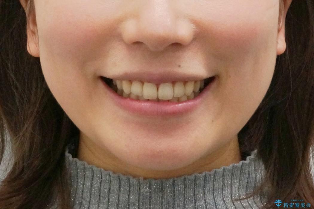 前歯のわずかなねじれ 歯を削らずマウスピースで インビザライン・ライトで手軽にの治療後(顔貌)