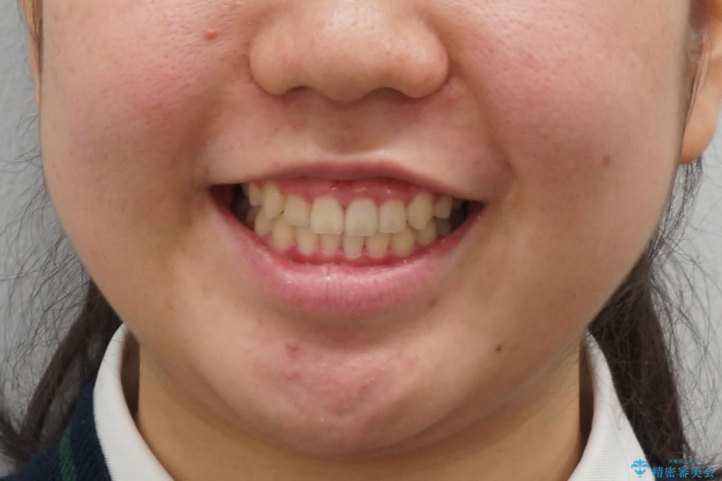 マウスピース矯正 前歯が後ろに引っ込んでいるのを、半年での治療後(顔貌)