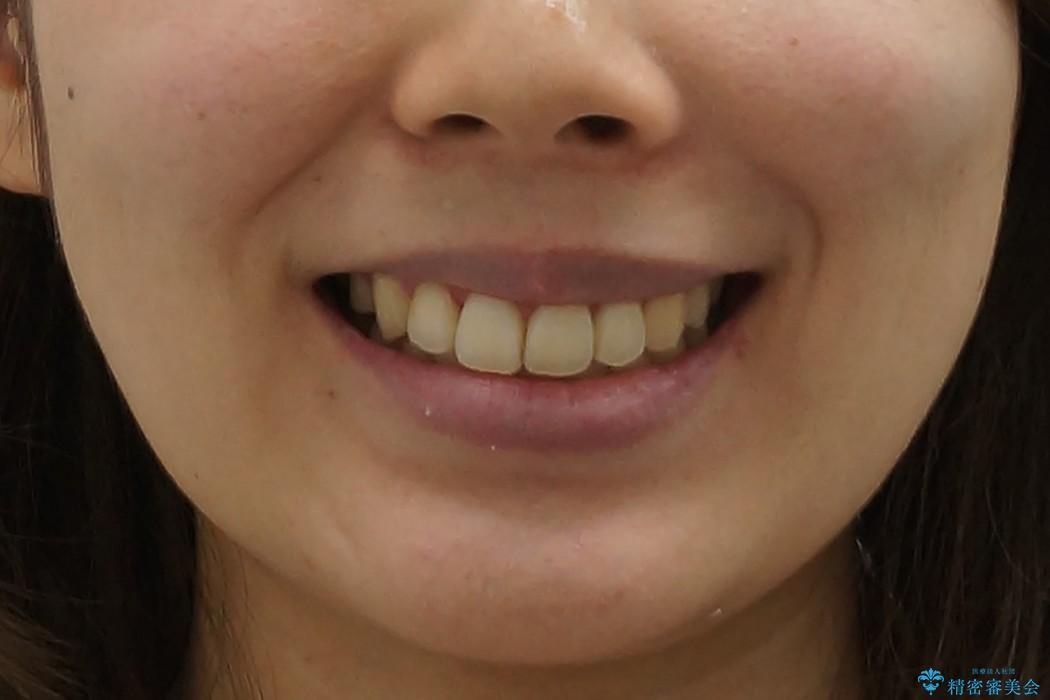 右だけ八重歯 最少限の抜歯の治療後(顔貌)