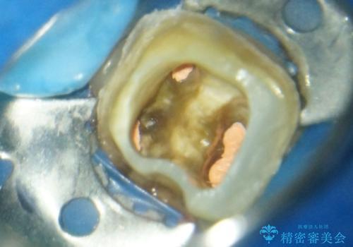 奥歯の再治療 根管治療からやり直す&セラミックできれいに咬合回復の治療中