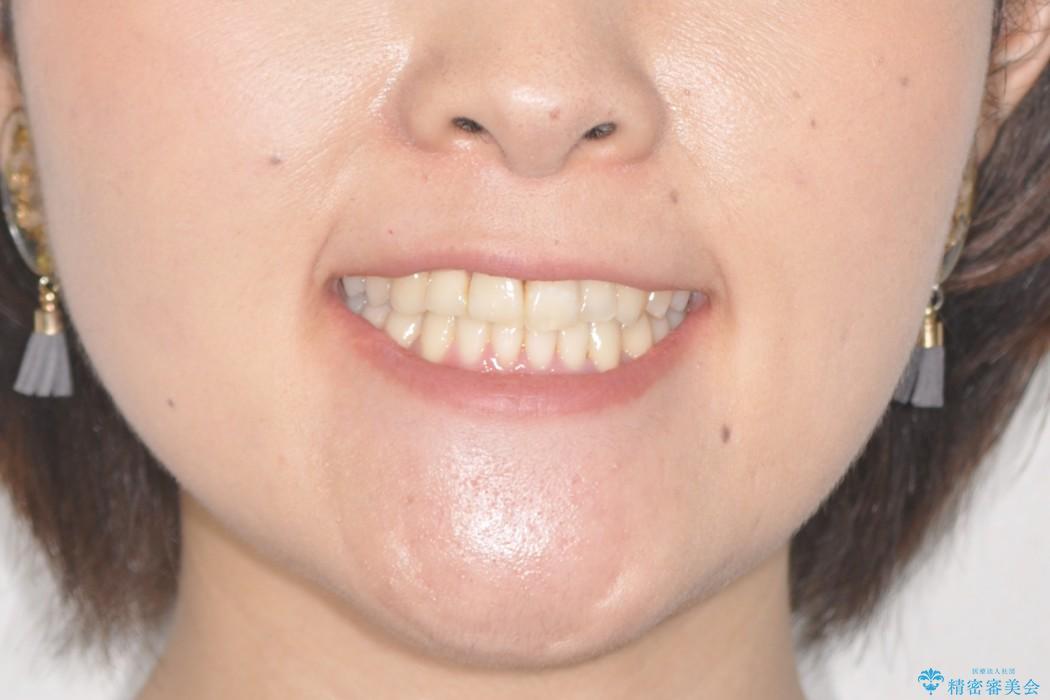 インビザラインで飛び出た歯をキレイに並べるの治療後(顔貌)