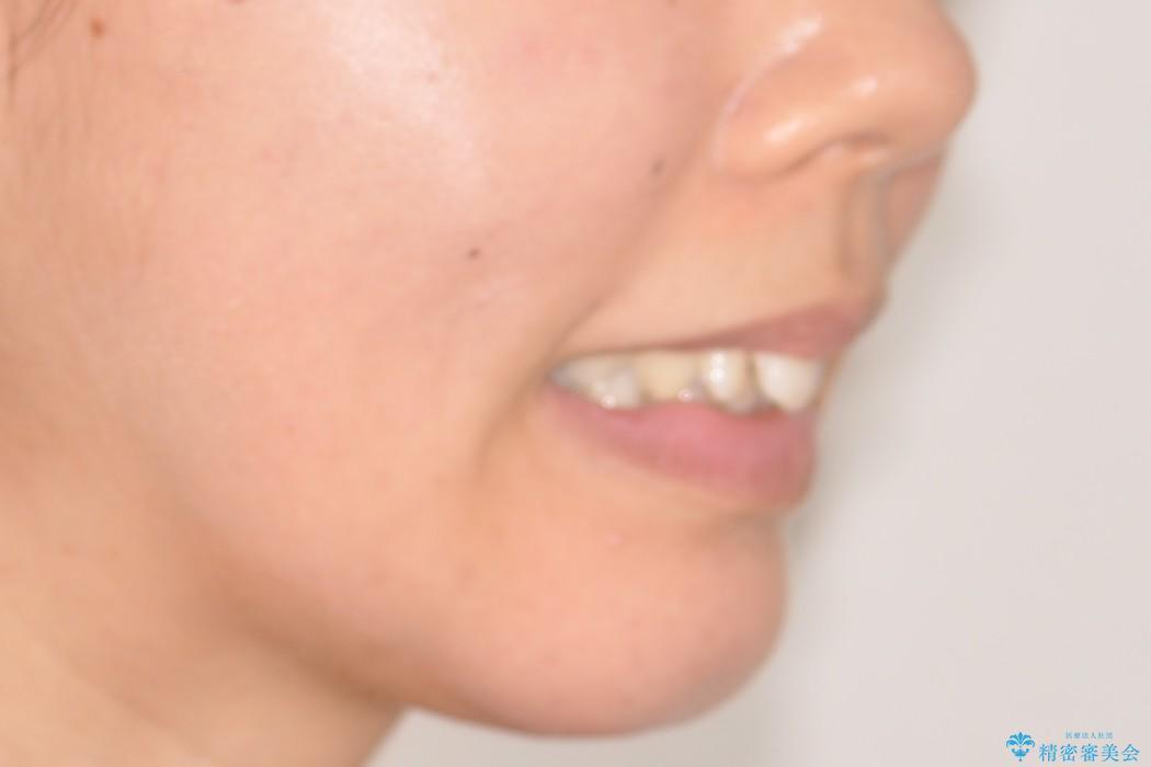 前歯のガタガタをキレイに (費用を抑えたメタル装置)の治療前(顔貌)