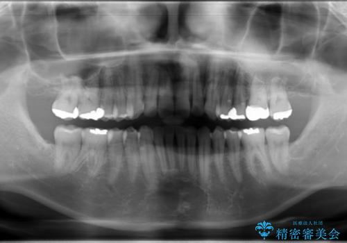 マウスピース矯正の代名詞 インビザラインによる前歯のクロスバイト治療の治療後