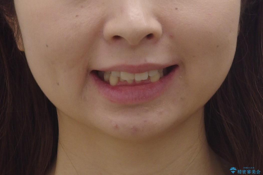 30代女性 インビザラインで前歯をキレイに マウスピース矯正の治療前(顔貌)