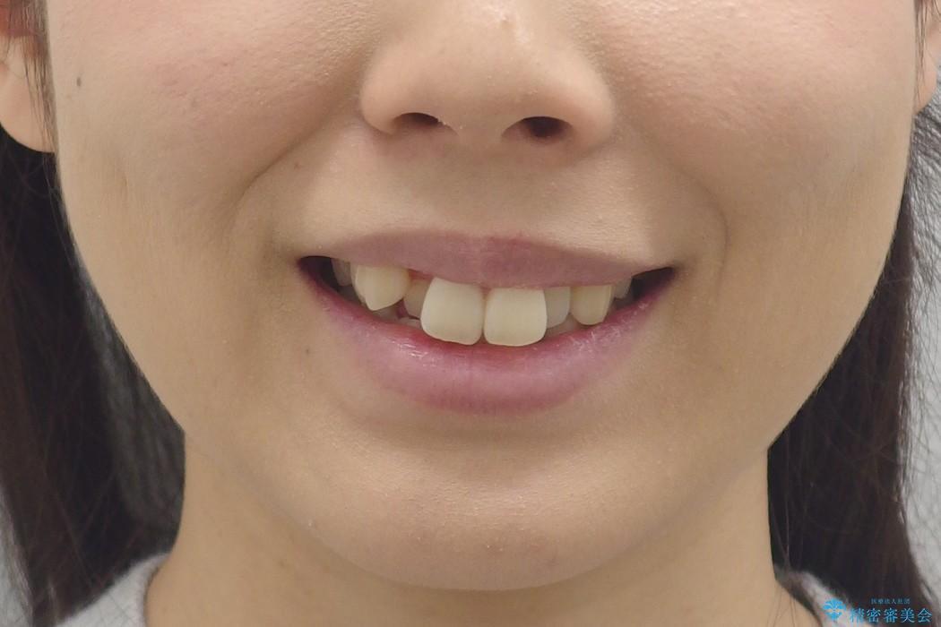 右だけ八重歯 最少限の抜歯の治療前(顔貌)