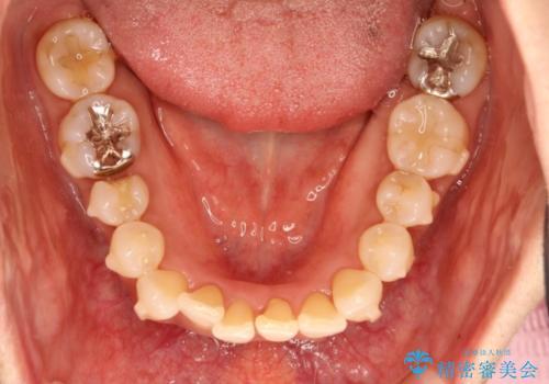 インビザラインによるかみ合わせの治療 奥歯の位置関係を是正してガタつきを治すの治療中
