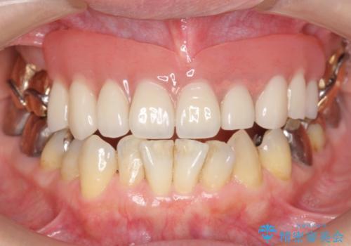金属床義歯・PGA(ゴールド)クラウン 合わない入れ歯の新製 の治療後