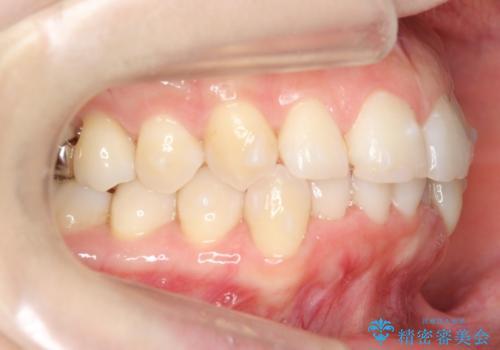 30代女性 インビザラインで前歯をキレイに マウスピース矯正の治療中