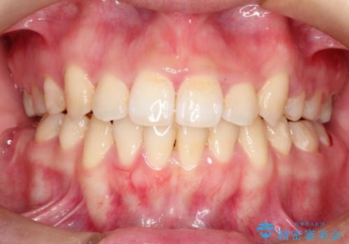 前歯がガタガタで食べ物が咬み切れない フルリンガルによる裏側矯正の治療後