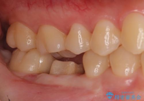 歯の高さがなく、被せ物が外れる 歯周外科手術で解決の治療中