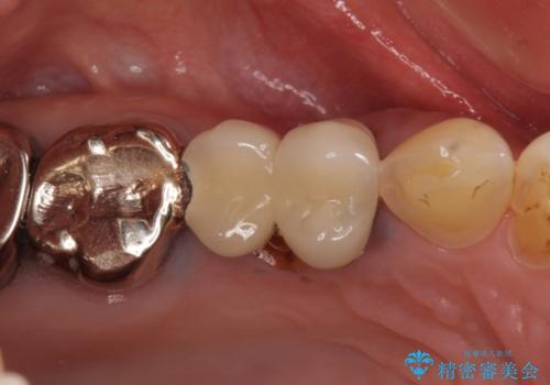 折れてしまった歯 歯周外科処置を伴うオールセラミックブリッジ治療の治療前