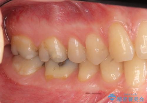 奥歯がしみる つめ物がかけたの治療前