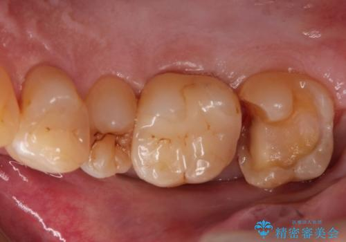 つめものが欠けた 奥歯のセラミックインレーの治療中
