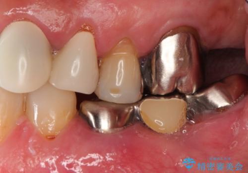 部分矯正による咬合平面の改善 オールセラミッククラウンとノンクラスプデンチャーの治療前