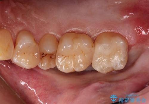つめものが欠けた 奥歯のセラミックインレーの症例 治療後