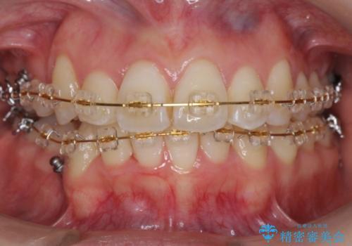 右だけ八重歯 最少限の抜歯の治療中