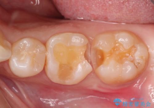 精度の高いむし歯治療。の治療中