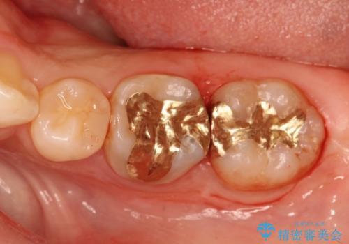 精度の高いむし歯治療。の症例 治療後