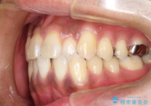 マウスピース矯正の代名詞 インビザラインによる前歯のクロスバイト治療の治療前