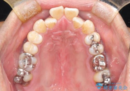 マウスピース矯正の代名詞 インビザラインによる前歯のクロスバイト治療の症例 治療前