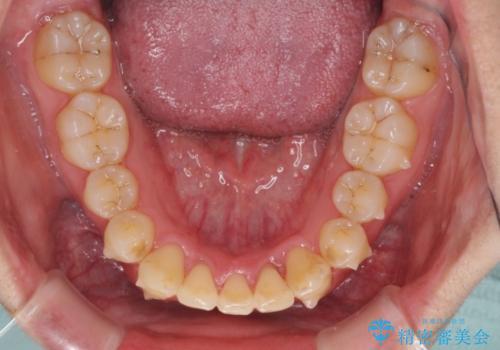 前歯のでこぼこを治したい ワイヤー矯正からインビザラインへのチェンジの治療中
