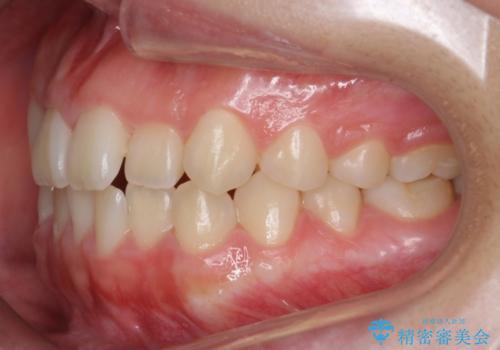 マウスピース矯正 前歯が後ろに引っ込んでいるのを、半年での治療前
