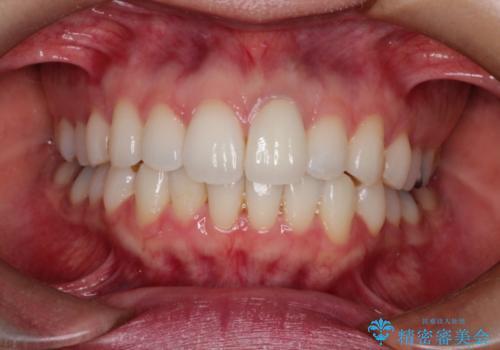 仮歯のままであった歯をセラミックへの症例 治療後