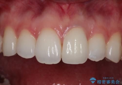 仮歯のままであった歯をセラミックへの治療後