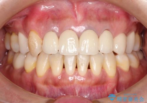 前歯(被せもの)の白さに合わせたホワイトニング 自然な仕上がりにの治療前