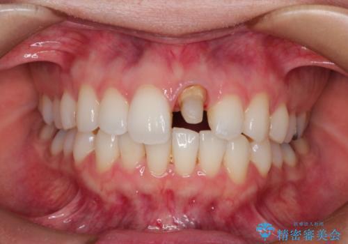 仮歯のままであった歯をセラミックへの治療中