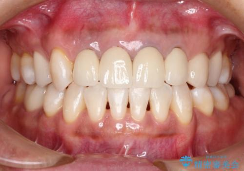 前歯(被せもの)の白さに合わせたホワイトニング 自然な仕上がりにの治療後
