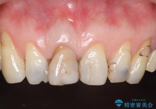 オールセラミッククラウン 前歯の見た目の改善の治療前