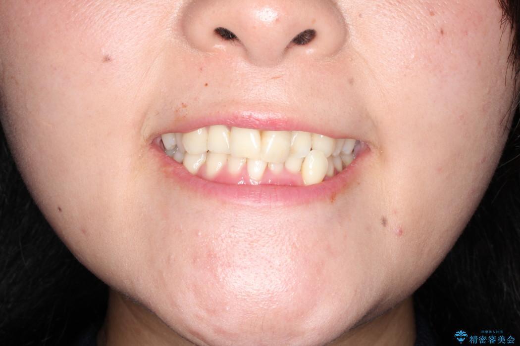インビザラインで飛び出た歯をキレイに並べるの治療前(顔貌)