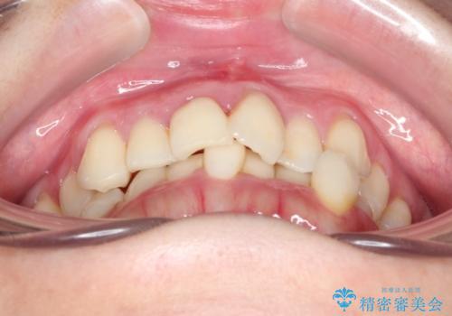 インビザラインで飛び出た歯をキレイに並べるの治療前