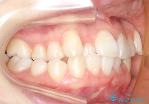 ハーフリンガル 矯正 抜歯して口元の改善を!の治療前