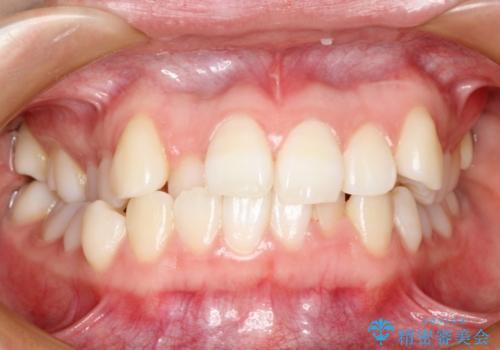 ハーフリンガル 矯正 抜歯して口元の改善を!の症例 治療前