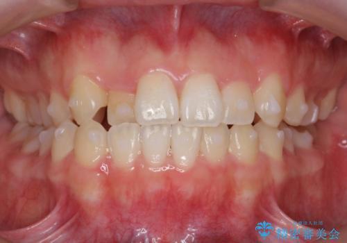 マウスピース矯正 前歯が後ろに引っ込んでいるのを、半年での治療中