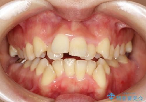 前歯がガタガタで食べ物が咬み切れない フルリンガルによる裏側矯正の症例 治療前