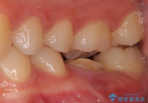 歯の根が割れた インプラント治療によるかみ合わせの回復の症例 治療前