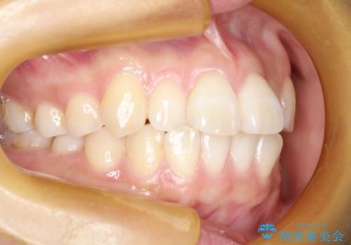 インビザライン治療 ガタつきの改善と一緒に、なるべく前歯を下げたいの治療前